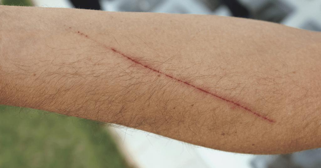 teen cutting
